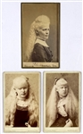 "Trio of 19th Century Albino ""Freak Show"" Cabinet Photos Including The Martin Sisters-""Barnums Albino Beauties!"""